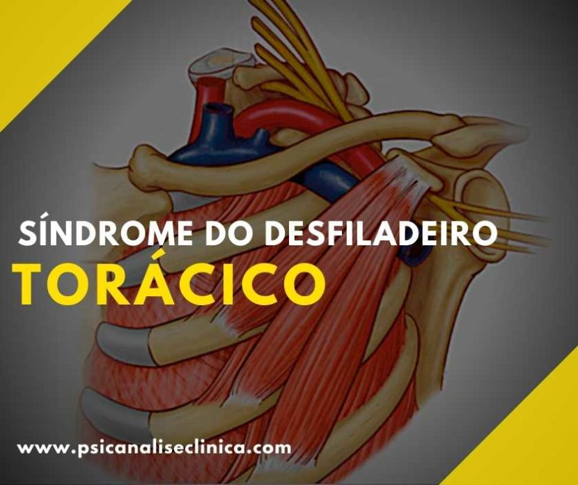 Muitas pessoas sofrem com a síndrome do desfiladeiro torácico. Por isso, entenda o que é essa síndrome, os sintomas e seus tratamentos.